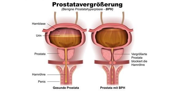 prostata pflanzliche medikamente