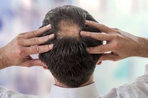 Haarausfall Ursachen Und Natürliche Behandlung Phytodoc