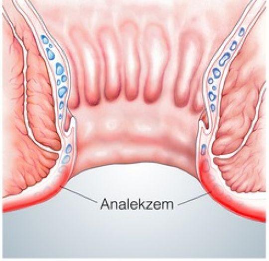 Analekzem Symptome Und Behandlung Phytodoc
